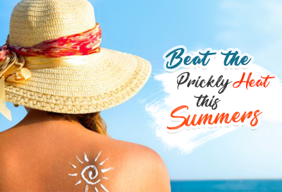 Beat the Prickly Heat this Summer